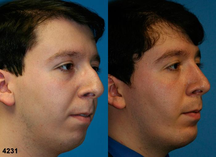 patient-2630-rhinoplasty-before-after-1
