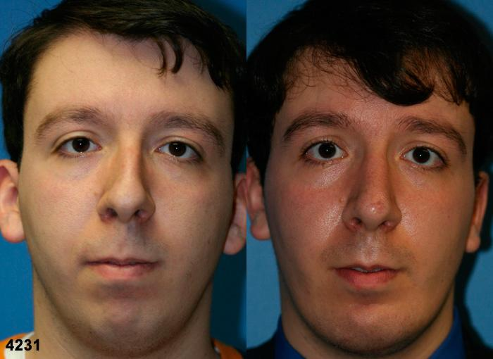 patient-2630-rhinoplasty-before-after