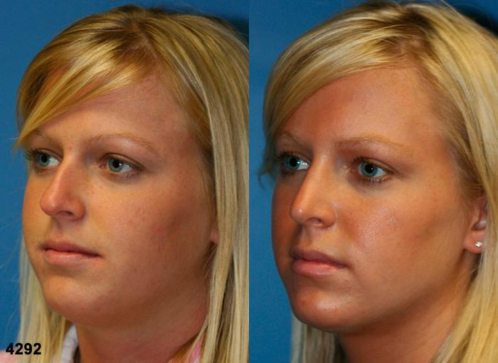 patient-2637-rhinoplasty-before-after-1