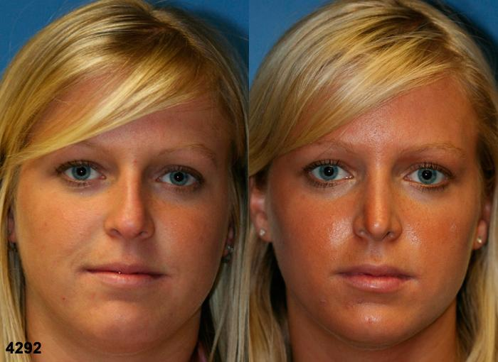 patient-2637-rhinoplasty-before-after