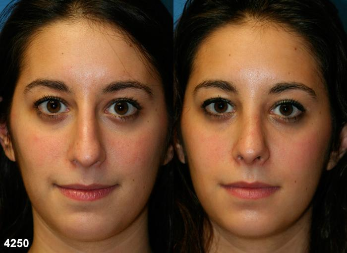patient-2644-rhinoplasty-before-after
