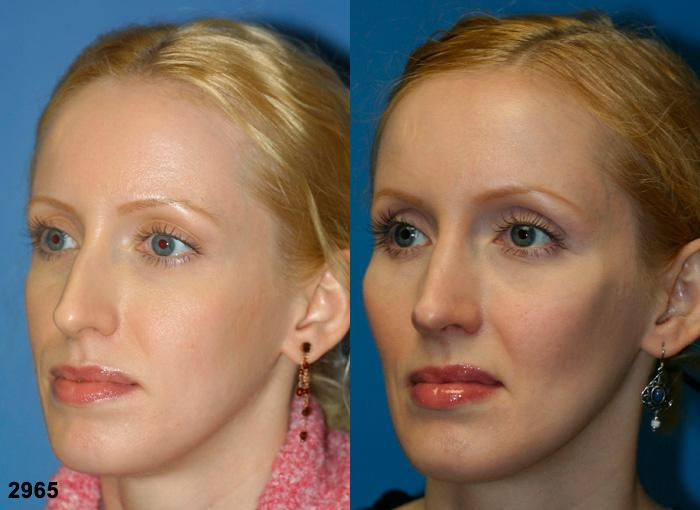 patient-2651-rhinoplasty-before-after-1