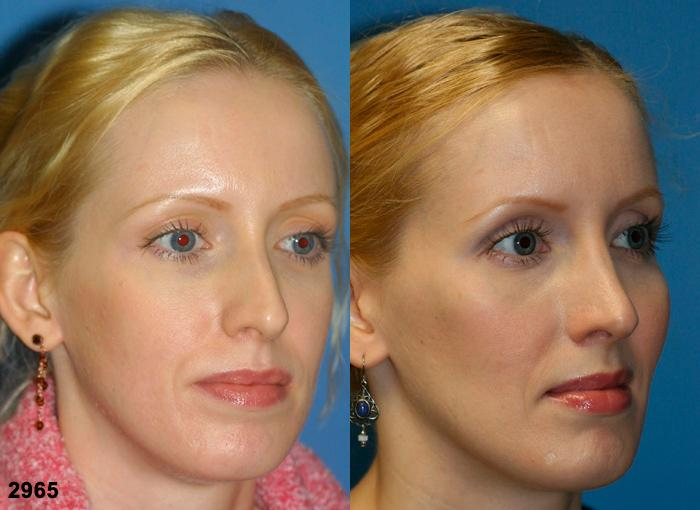 patient-2651-rhinoplasty-before-after