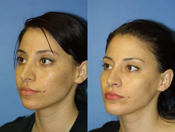 patient-2658-rhinoplasty-before-after-1