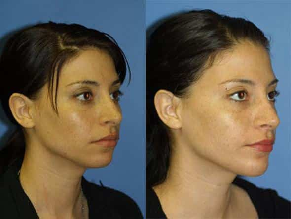 patient-2658-rhinoplasty-before-after