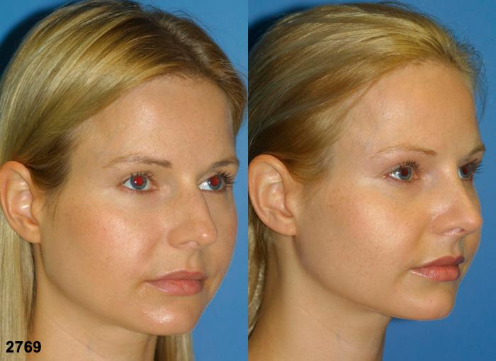 patient-2665-rhinoplasty-before-after-1