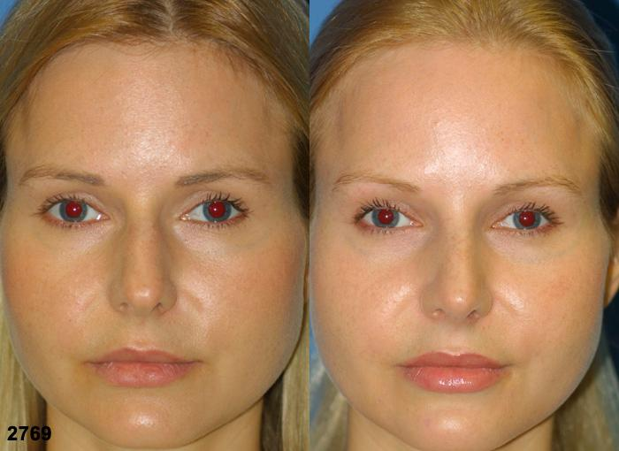 patient-2665-rhinoplasty-before-after