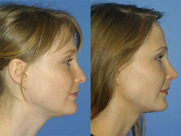 patient-2672-rhinoplasty-before-after-1