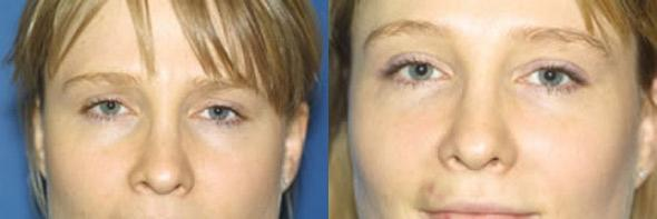 patient-2672-rhinoplasty-before-after