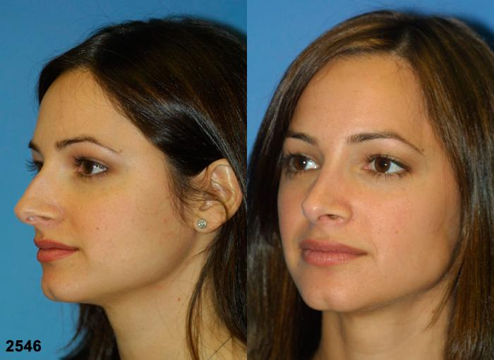 patient-2684-rhinoplasty-before-after-1