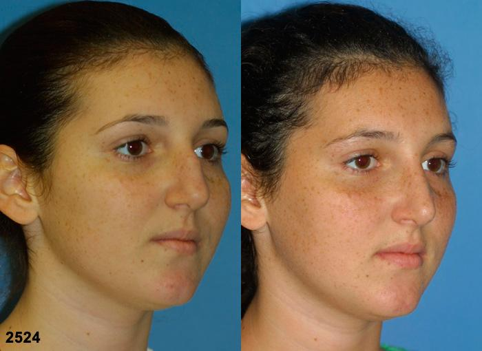 patient-2691-rhinoplasty-before-after