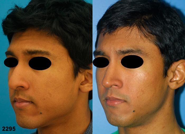 patient-2698-rhinoplasty-before-after-1