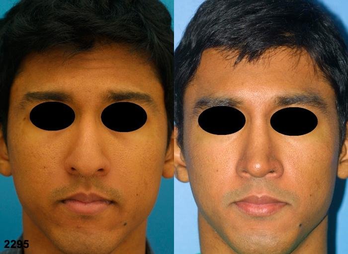 patient-2698-rhinoplasty-before-after