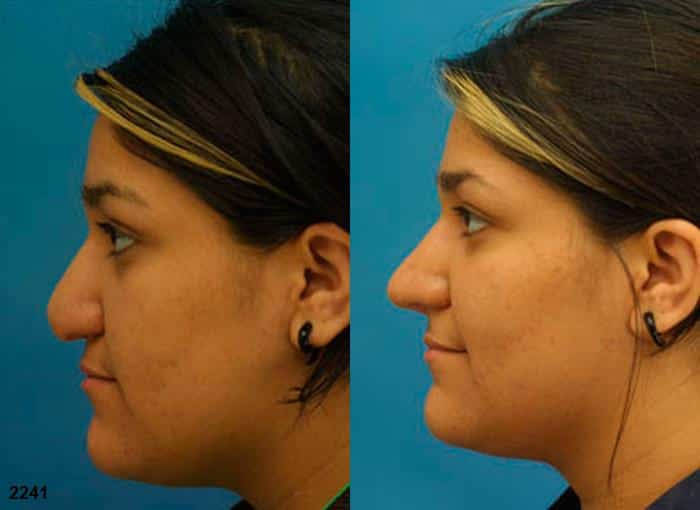 patient-2705-rhinoplasty-before-after-1