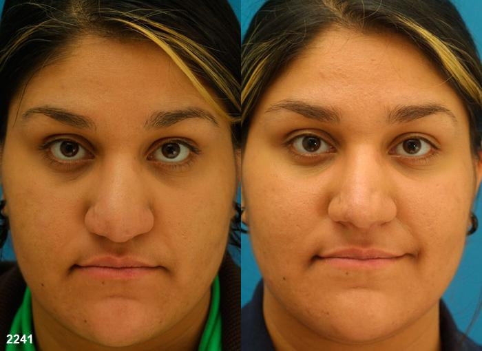 patient-2705-rhinoplasty-before-after