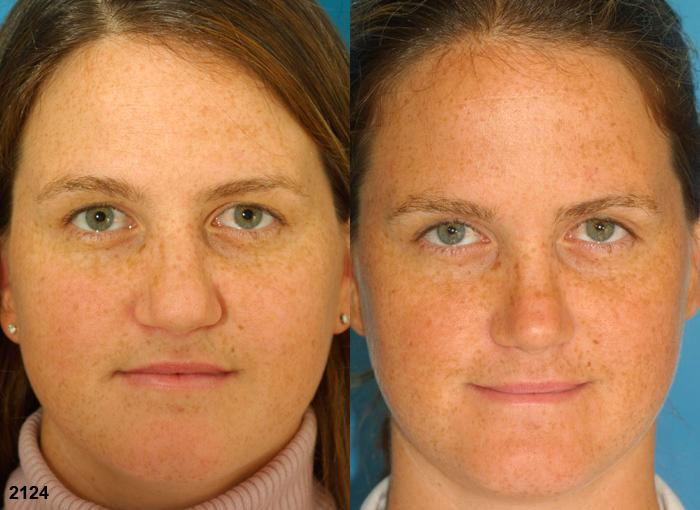 patient-2715-rhinoplasty-before-after