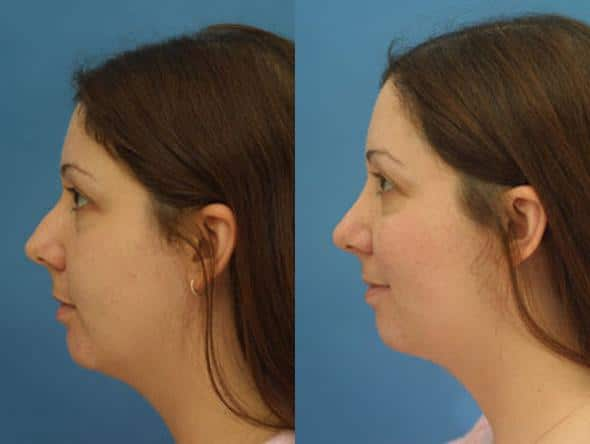 patient-2725-rhinoplasty-before-after-1