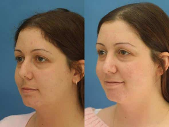 patient-2725-rhinoplasty-before-after