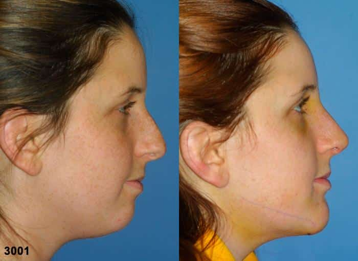patient-2738-rhinoplasty-before-after