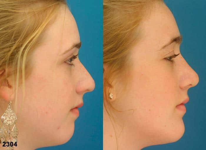 patient-2741-rhinoplasty-before-after-1