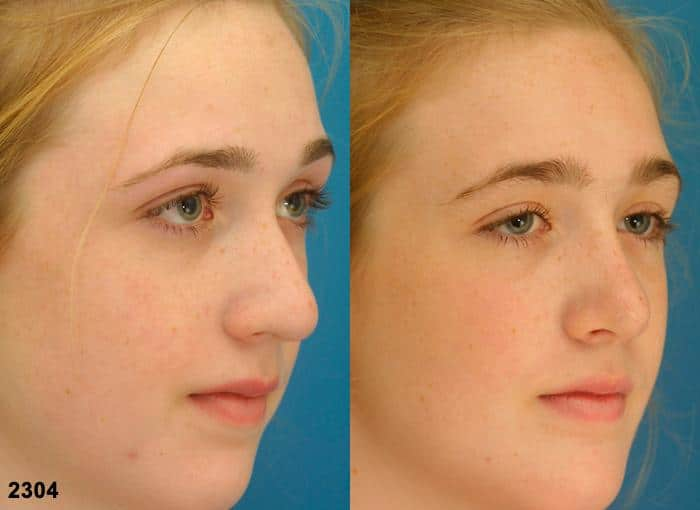 patient-2741-rhinoplasty-before-after