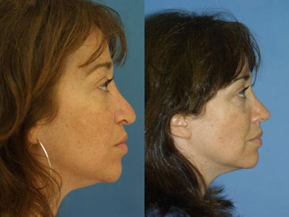 patient-2746-rhinoplasty-before-after-1