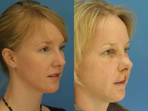patient-2751-rhinoplasty-before-after-1