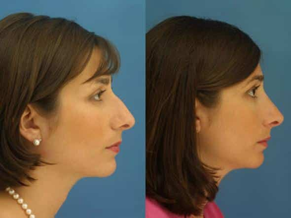 patient-2756-rhinoplasty-before-after-1