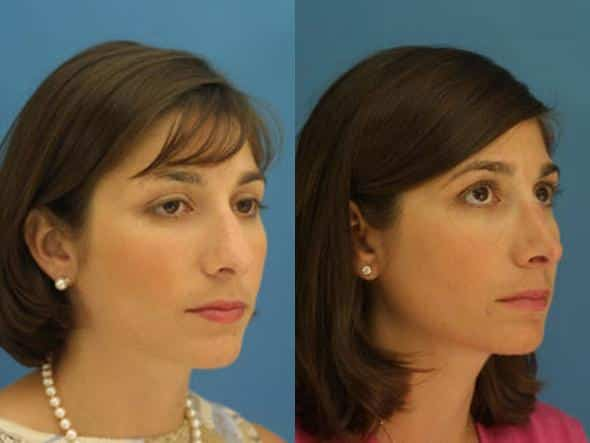 patient-2756-rhinoplasty-before-after
