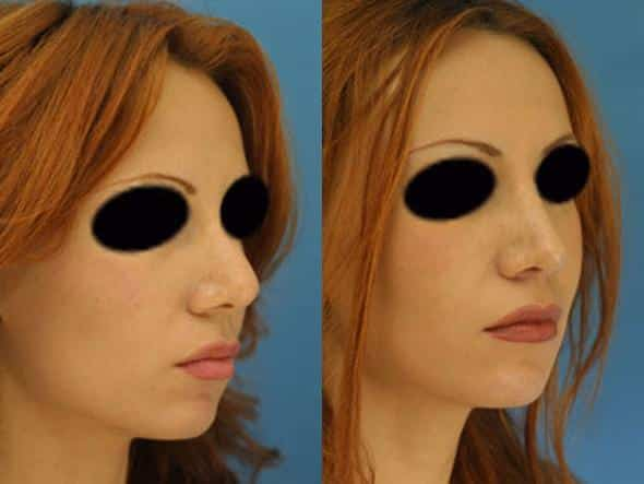 patient-2761-rhinoplasty-before-after-1