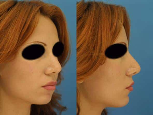 patient-2761-rhinoplasty-before-after