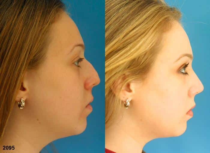patient-2772-rhinoplasty-before-after-1