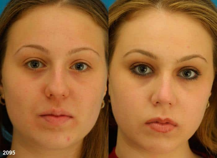 patient-2772-rhinoplasty-before-after