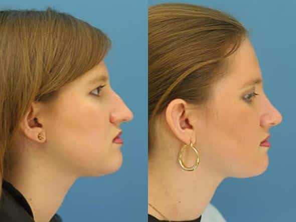 patient-2779-rhinoplasty-before-after
