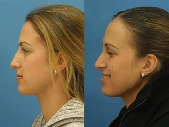 patient-2785-rhinoplasty-before-after