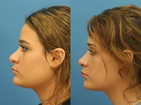 patient-2788-rhinoplasty-before-after