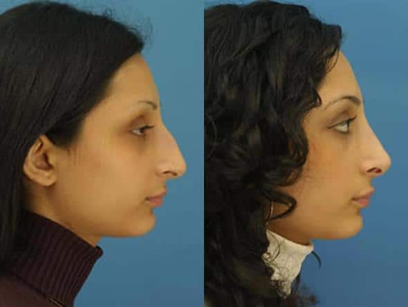 patient-2791-rhinoplasty-before-after