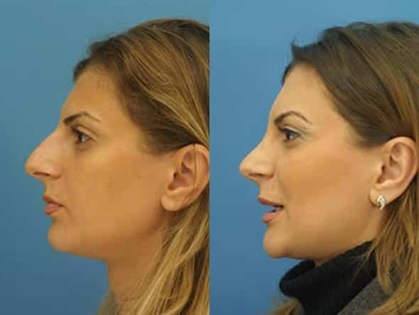 patient-2795-rhinoplasty-before-after