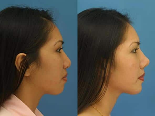 patient-2798-rhinoplasty-before-after