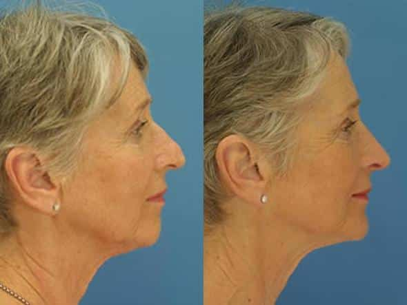 patient-2804-rhinoplasty-before-after