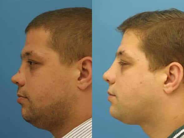 patient-2819-rhinoplasty-before-after