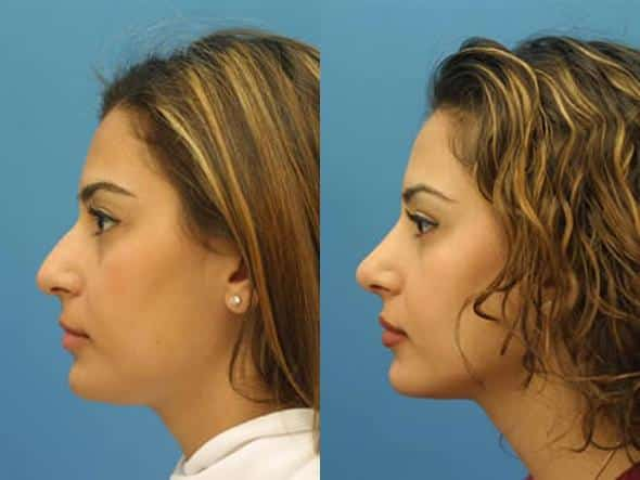 patient-2822-rhinoplasty-before-after