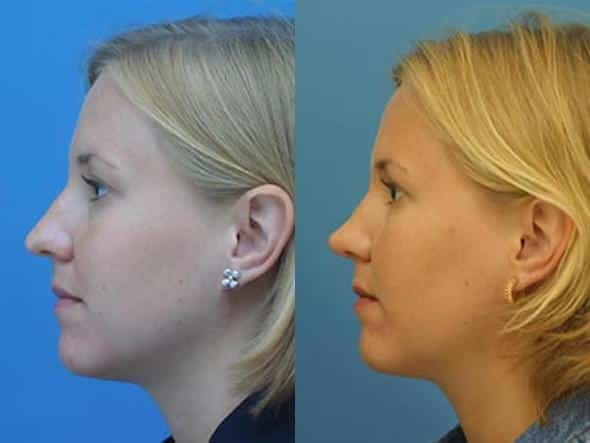 patient-2829-rhinoplasty-before-after