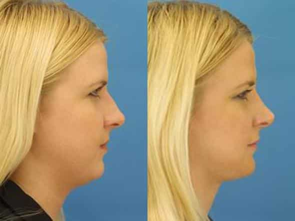 patient-2832-rhinoplasty-before-after
