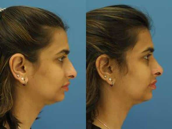 patient-2835-rhinoplasty-before-after