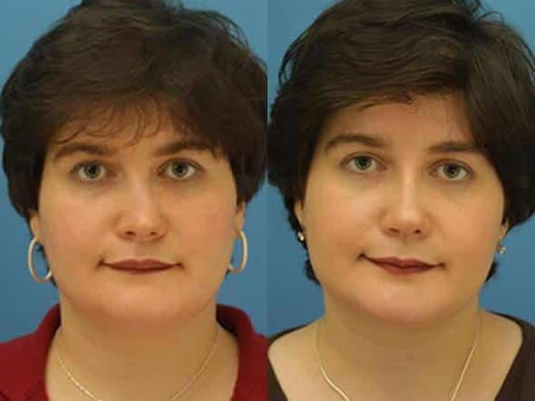 patient-2838-rhinoplasty-before-after