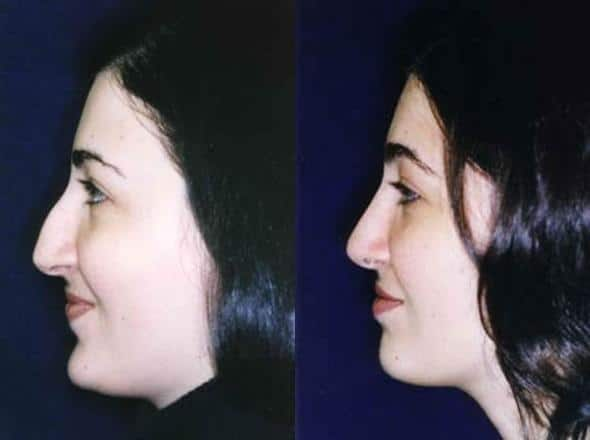 patient-2841-rhinoplasty-before-after-1