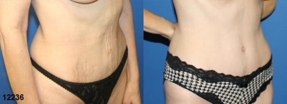 patient-2965-tummy-tuck-abdominoplasty-before-after-1