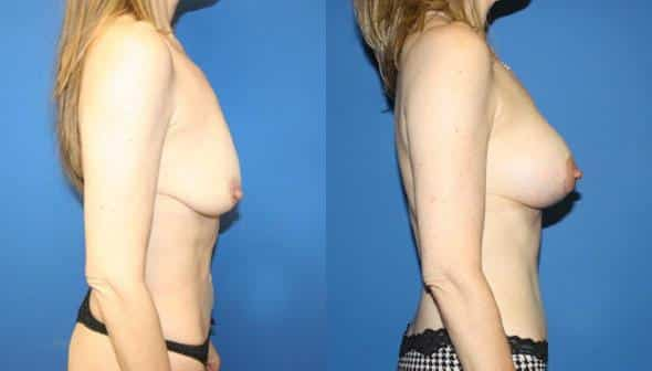 patient-2976-tummy-tuck-abdominoplasty-before-after-1
