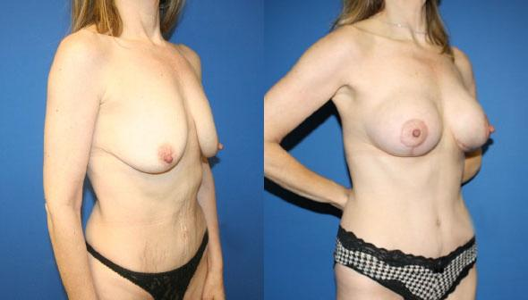 patient-2976-tummy-tuck-abdominoplasty-before-after